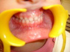 Dentición temporal - Clínica de Odontología Natural Dra. León