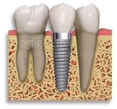 Ultima tecnologia en implantes .tecnicas minimamente invasivas