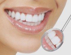 Control Dental Europeo