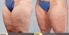 Antes y después - Héctor Echeverry