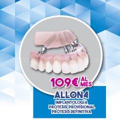 Santident Clínica Dental Paterna