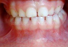 Pistas de composites en molares inferiores para corregir la mordida cruzada - Clínica dental Dra. León