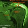 Resonancia Magnetica del hombro - Cirugía de hombro