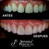 Diseños de sonrisa alta Estetica - Clínica Sonrisa perfecta