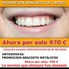 Ortodoncia .Bracketes de zafiro. Esteticos