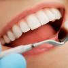 tratamiento - Clínica Dental Montería