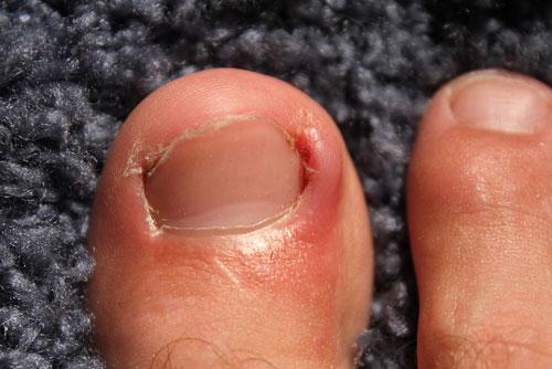 ingrown_toenails