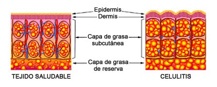 Evolucin celulitis