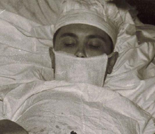 Kendi apandisitini alan cerrah Leonid Rogozov