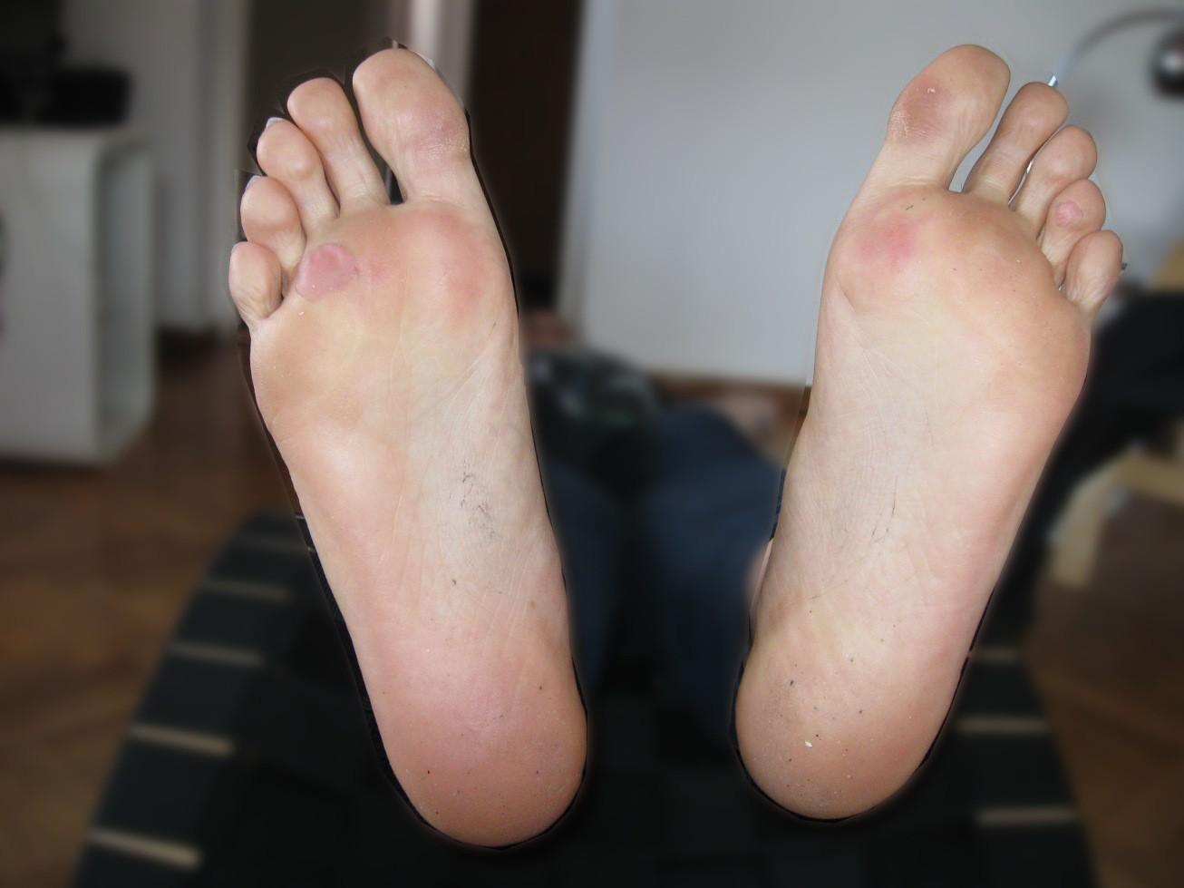 vattenfyllda blåsor på fötterna