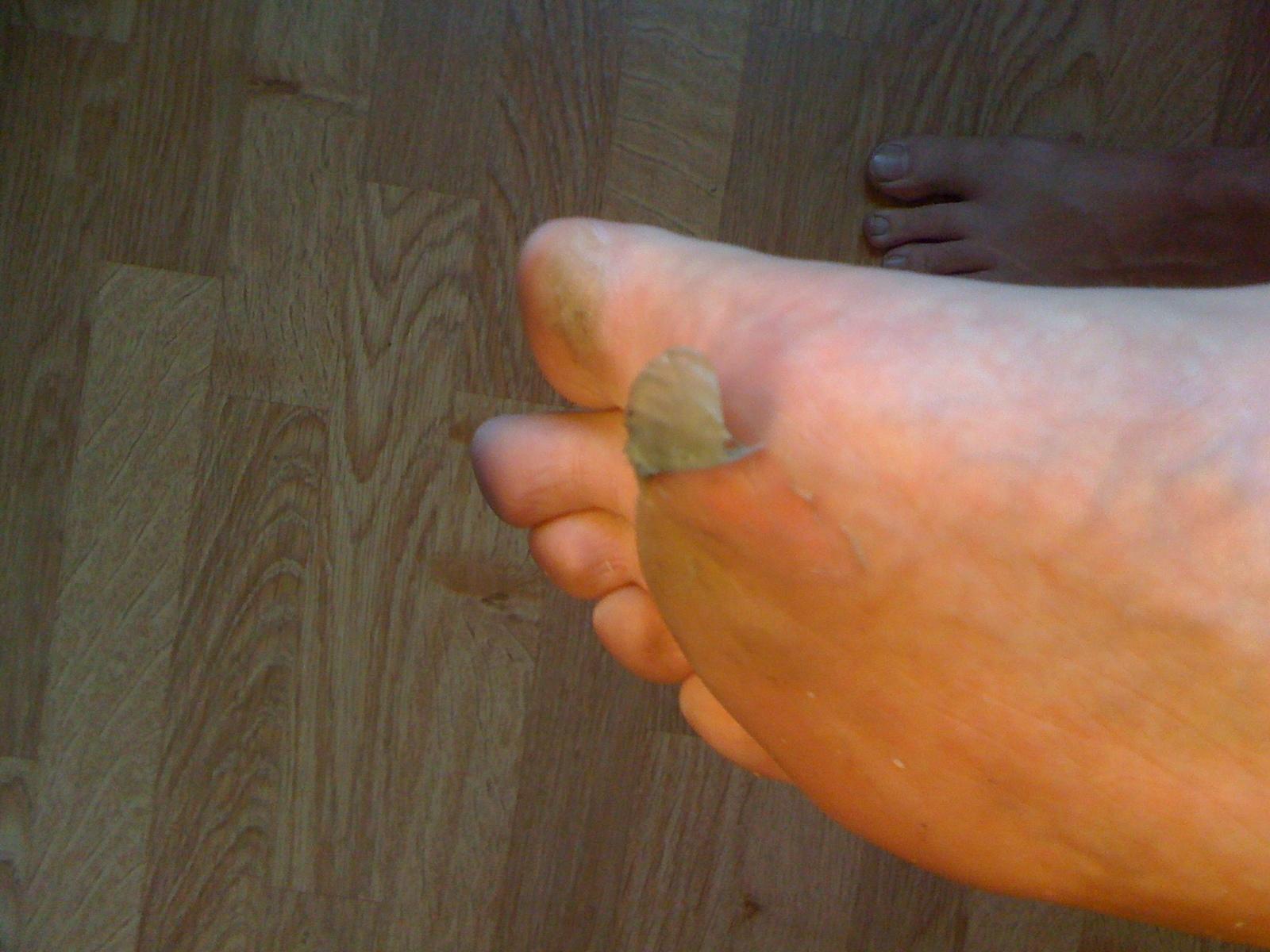 tappar skinn på händer och fötter