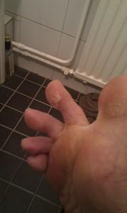 Blåsor orsakade av löpning i minusgrader