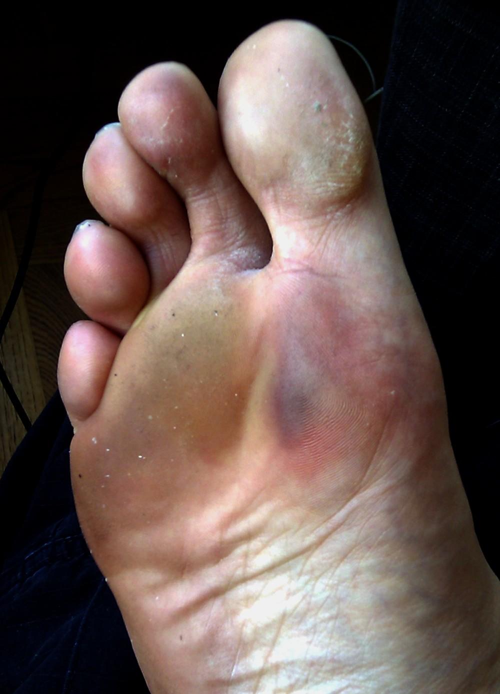 blodblåsa under foten