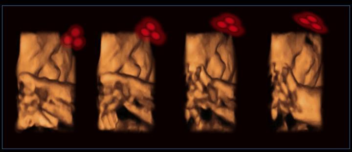 Des chercheurs rapportent la première expérience dans laquelle ils démontrent que les foetus peuvent reconnaitre des formes similaires aux visages.