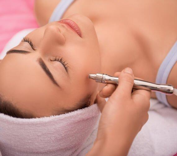 Procedure of Pelleve skin tightening