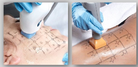 Procedure of Thermage tightening