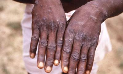 monkeypox
