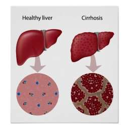 Cells of the liver, compared to cells of cirrhotic livers