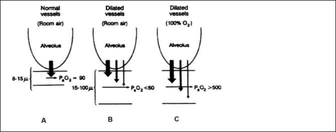 Illustration of precapillary pulmonary vascular dilatations