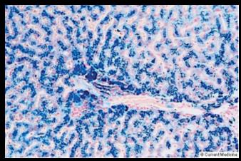 http://www.e-med.co.il/emed/new/Usersite/Presentations/Liver_Diseases/10.files/slide0014_image070.jpg