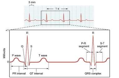 http://upload.wikimedia.org/wikipedia/commons/thumb/a/aa/2022_Electrocardiogram.jpg/640px-2022_Electrocardiogram.jpg