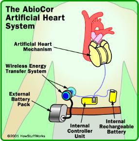 http://static.ddmcdn.com/gif/artificial-heart-abiocor-diagram.gif