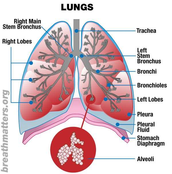 COPD Lung disease - diagram