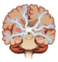 adult-seizure-generalized.gif