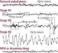 http://www.helpguide.org/images/harvard/brain-wave-patterns-during-sleep.jpg