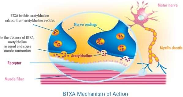 D:\Assignment\Biology\Sem2\botulin-toxin.jpg