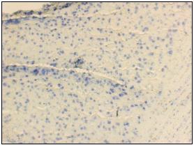 IHC-C-Brain.jpg
