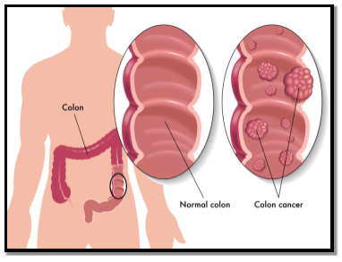 Differences between normal and cancerous colon