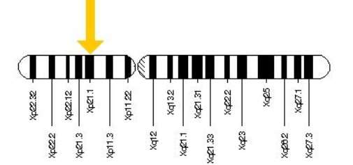 The OTC gene is located on the short (p) arm of the X chromosome at position 21.1.
