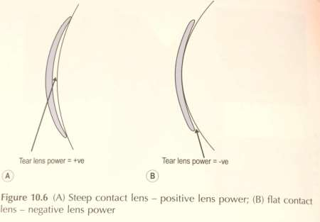 Sleep contact lens - positive lens power and flat contact lens - negative lens power