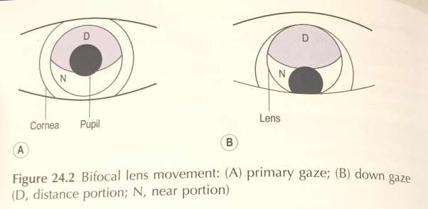 Bifocal lens movements: Primary Gaze b) down gace d) distance portion, n) near portion