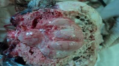 Dorsal view of the African ostrich brain