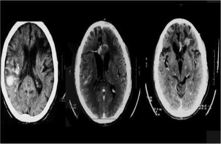 hemoragii cerebrale multiple