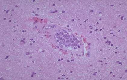 cerebral intravascular lymphomatosis-2