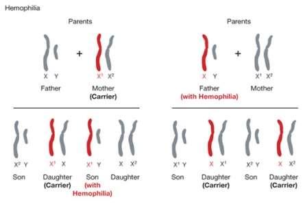 http://geneed.nlm.nih.gov/images/hemophilia_sm.jpg