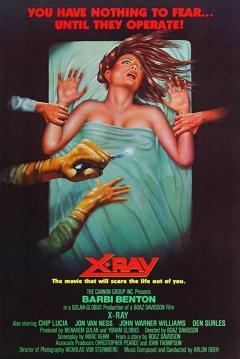 Poster Rayos X