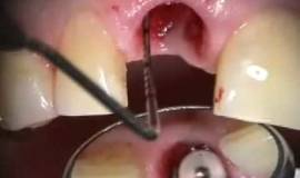 Thumb implant microsurgery failing upper central immediate implant and provisional?1474879983