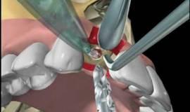 Thumb immediate provisional restoration of dental implants?1474880186