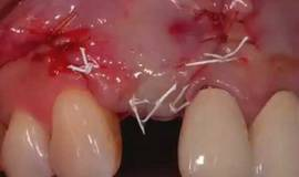 Thumb esthetic implant management mov?1474880210