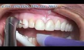 Thumb veneer removal?1474880426