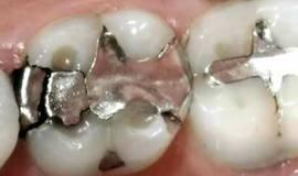 Thumb educational videos failing amalgam fillings mp4?1474877909