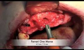 Thumb ridge spliting easy graft with dental implant by ferrari technology m4v?1474880935
