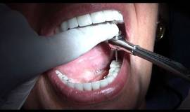 Thumb full mouth rehabilitation with implant?1474880941
