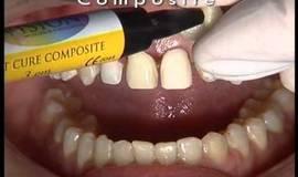 Thumb ceodont estetica dental cementado de carillas de porcelana en un caso clinico con diastemas?1474880981