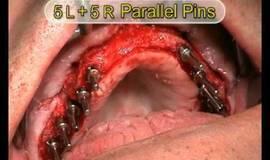 Thumb implante de arco completo con elevador de senos r l?1474880991