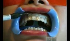Thumb dental bleaching?1563273925